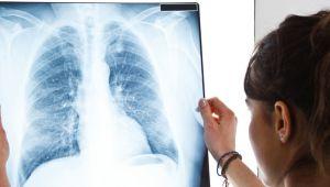 Akciğer Kanseri belirtileri, nedenleri ve tedavisi