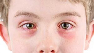 Alerjik konjonktivit Belirtileri, Nedenleri ve Tedavisi