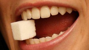 Diş Çürümesine Neden Olan Yiyecekler Belirlendi