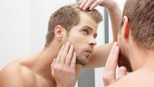 Erkekler Saç Kaybının Önüne Geçebilirler