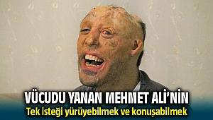 Küçükken yanan Mehmet Ali'nin tek isteği yürüyebilmek ve konuşabilmek