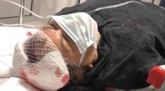 Muğla'da köpeklerin saldırısına uğrayan emekli öğretmen ağır yaralandı